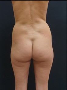 Buttock Lift with Augmentation Before Photo by Johnny Franco, MD; Austin, TX - Case 39856