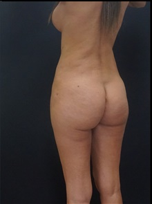 Buttock Lift with Augmentation After Photo by Johnny Franco, MD; Austin, TX - Case 39857