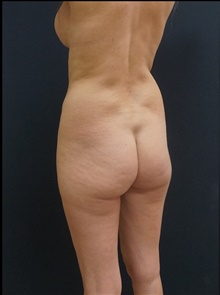 Buttock Lift with Augmentation Before Photo by Johnny Franco, MD; Austin, TX - Case 39857