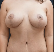 Breast Lift After Photo by Johnny Franco, MD; Austin, TX - Case 39859