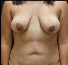 Breast Lift Before Photo by Johnny Franco, MD; Austin, TX - Case 39859