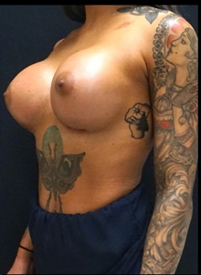 Breast Augmentation After Photo by Johnny Franco, MD; Austin, TX - Case 39910