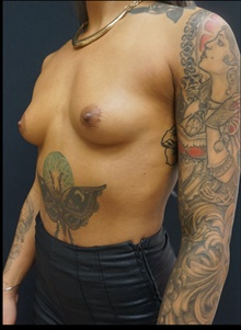 Breast Augmentation Before Photo by Johnny Franco, MD; Austin, TX - Case 39910