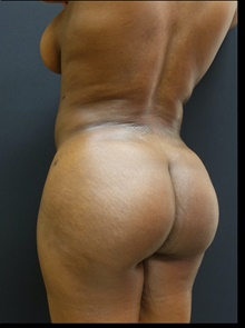 Buttock Lift with Augmentation After Photo by Johnny Franco, MD; Austin, TX - Case 39913