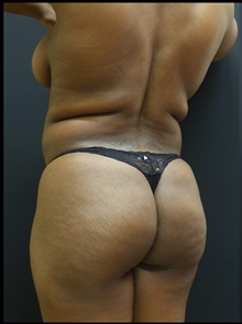 Buttock Lift with Augmentation Before Photo by Johnny Franco, MD; Austin, TX - Case 39913