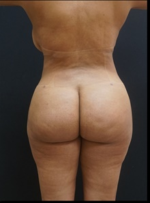 Buttock Lift with Augmentation After Photo by Johnny Franco, MD; Austin, TX - Case 39927