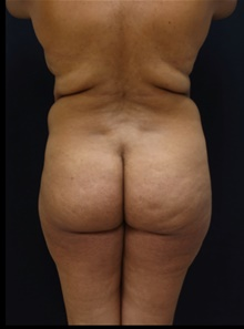 Buttock Lift with Augmentation Before Photo by Johnny Franco, MD; Austin, TX - Case 39927