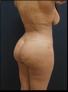 Buttock Lift with Augmentation After Photo by Johnny Franco, MD; Austin, TX - Case 39928