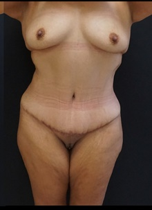 Tummy Tuck After Photo by Johnny Franco, MD; Austin, TX - Case 39942