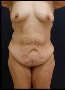 Tummy Tuck Before Photo by Johnny Franco, MD; Austin, TX - Case 39942