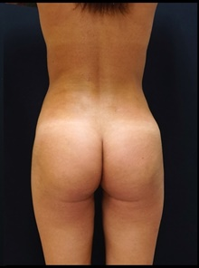 Buttock Lift with Augmentation After Photo by Johnny Franco, MD; Austin, TX - Case 39944