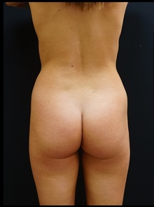 Buttock Lift with Augmentation Before Photo by Johnny Franco, MD; Austin, TX - Case 39944