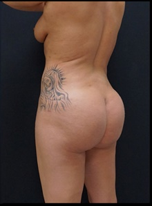 Buttock Lift with Augmentation After Photo by Johnny Franco, MD; Austin, TX - Case 39959