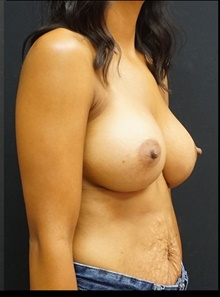 Breast Augmentation After Photo by Johnny Franco, MD; Austin, TX - Case 39985