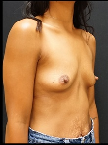 Breast Augmentation Before Photo by Johnny Franco, MD; Austin, TX - Case 39985