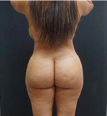 Buttock Lift with Augmentation After Photo by Johnny Franco, MD; Austin, TX - Case 43971