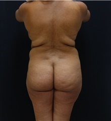 Buttock Lift with Augmentation Before Photo by Johnny Franco, MD; Austin, TX - Case 43971
