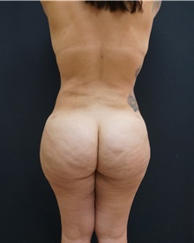 Buttock Lift with Augmentation After Photo by Johnny Franco, MD; Austin, TX - Case 43972