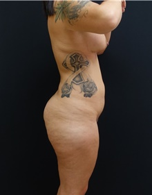 Buttock Lift with Augmentation Before Photo by Johnny Franco, MD; Austin, TX - Case 43972