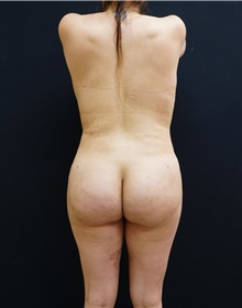 Buttock Lift with Augmentation After Photo by Johnny Franco, MD; Austin, TX - Case 44286