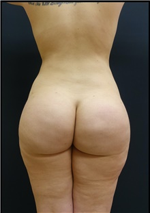 Buttock Lift with Augmentation After Photo by Johnny Franco, MD; Austin, TX - Case 44287