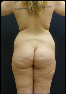 Buttock Lift with Augmentation Before Photo by Johnny Franco, MD; Austin, TX - Case 44287