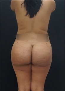 Buttock Lift with Augmentation After Photo by Johnny Franco, MD; Austin, TX - Case 44288