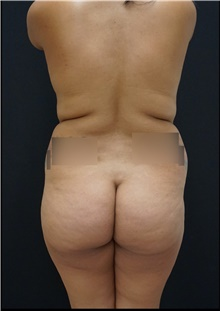 Buttock Lift with Augmentation Before Photo by Johnny Franco, MD; Austin, TX - Case 44288