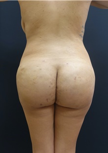 Buttock Lift with Augmentation After Photo by Johnny Franco, MD; Austin, TX - Case 44290