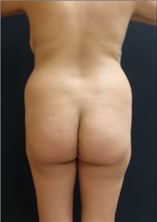 Buttock Lift with Augmentation Before Photo by Johnny Franco, MD; Austin, TX - Case 44290