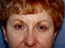 Eyelid Surgery After Photo by Joseph Rucker, MD; Eau Claire, WI - Case 29448