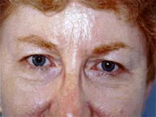 Eyelid Surgery Before Photo by Joseph Rucker, MD; Eau Claire, WI - Case 29448