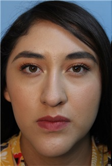 Rhinoplasty Before and After Photos | American Society of