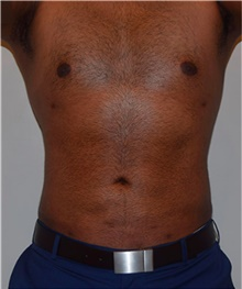 Liposuction After Photo by David Rapaport, MD; New York, NY - Case 40452