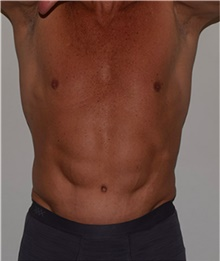 Tummy Tuck After Photo by David Rapaport, MD; New York, NY - Case 40456