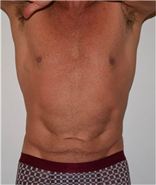 Tummy Tuck Before Photo by David Rapaport, MD; New York, NY - Case 40456