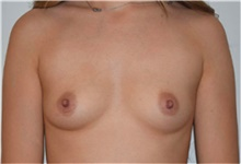 Breast Augmentation Before Photo by David Rapaport, MD; New York, NY - Case 40462