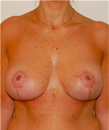 Breast Lift After Photo by David Rapaport, MD; New York, NY - Case 40463