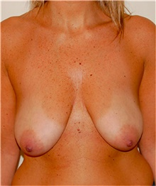 Breast Lift Before Photo by David Rapaport, MD; New York, NY - Case 40463