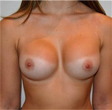 Breast Implant Revision After Photo by David Rapaport, MD; New York, NY - Case 40464
