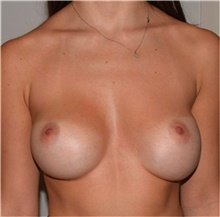 Breast Implant Revision Before Photo by David Rapaport, MD; New York, NY - Case 40464
