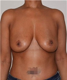Breast Implant Removal After Photo by David Rapaport, MD; New York, NY - Case 40465