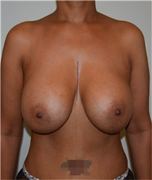 Breast Implant Removal Before Photo by David Rapaport, MD; New York, NY - Case 40465