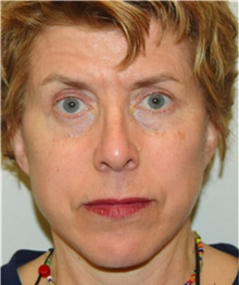 Facelift After Photo by David Rapaport, MD; New York, NY - Case 40476