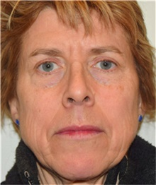 Facelift Before Photo by David Rapaport, MD; New York, NY - Case 40476