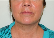 Facelift After Photo by David Rapaport, MD; New York, NY - Case 40478