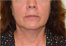 Facelift Before Photo by David Rapaport, MD; New York, NY - Case 40478