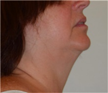 Liposuction Before Photo by David Rapaport, MD; New York, NY - Case 40486