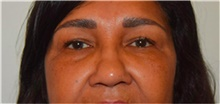 Eyelid Surgery Before Photo by David Rapaport, MD; New York, NY - Case 40503