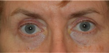 Eyelid Surgery After Photo by David Rapaport, MD; New York, NY - Case 40504